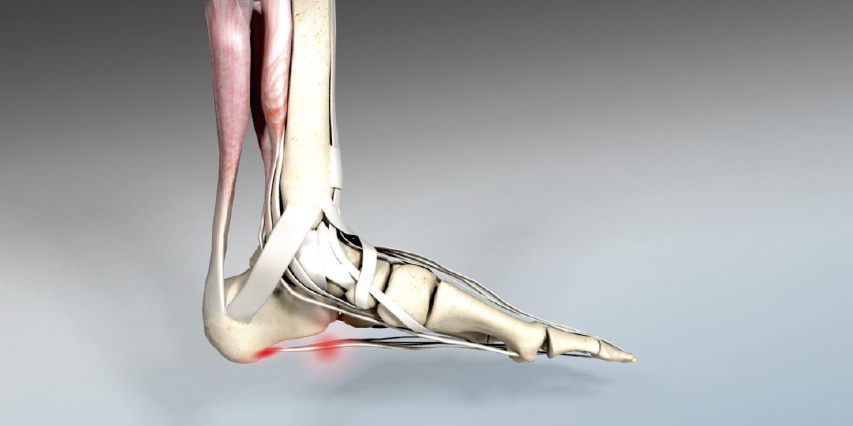 Druckschmerz Fußsohle